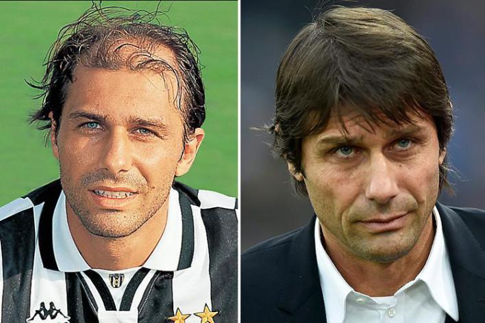 antonio conte before and after hair
