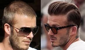 david beckham hair plugs