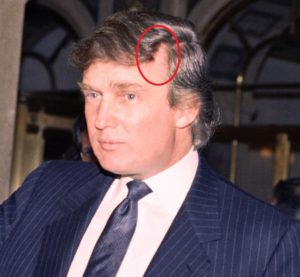 trump hair plugs