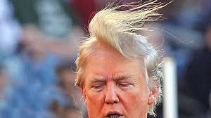 trumps hairline