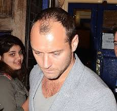 jude law going bald