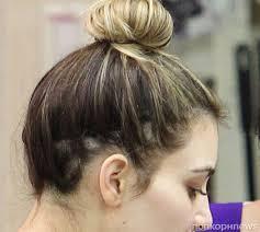 kim kardashian alopecia