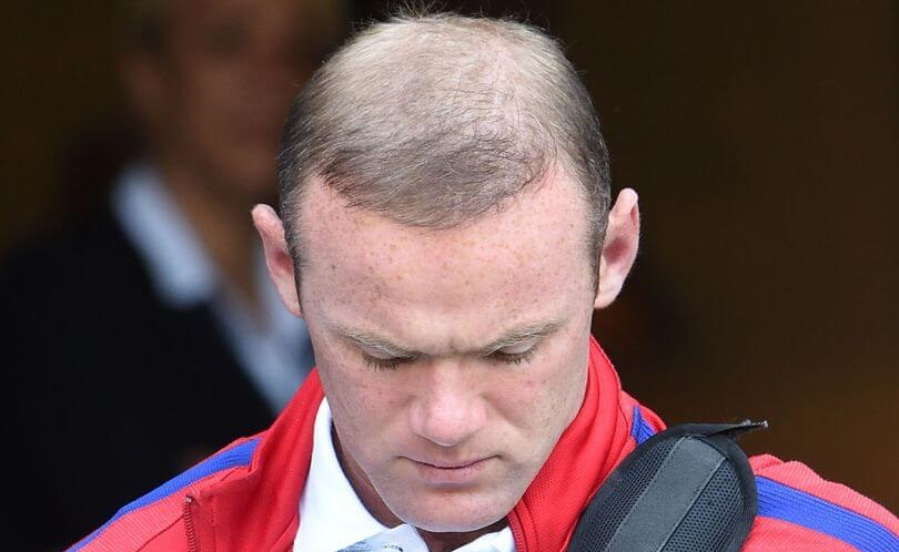 wayne rooney balding