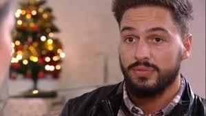 Mario Falcone had a beard transplant