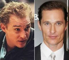 matthew mcconaughey hair treatment