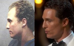 matthew mcconaughey hair implant