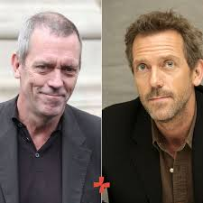 hugh laurie hair transplant