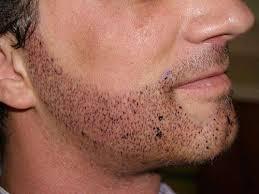 celebrity beard transplant