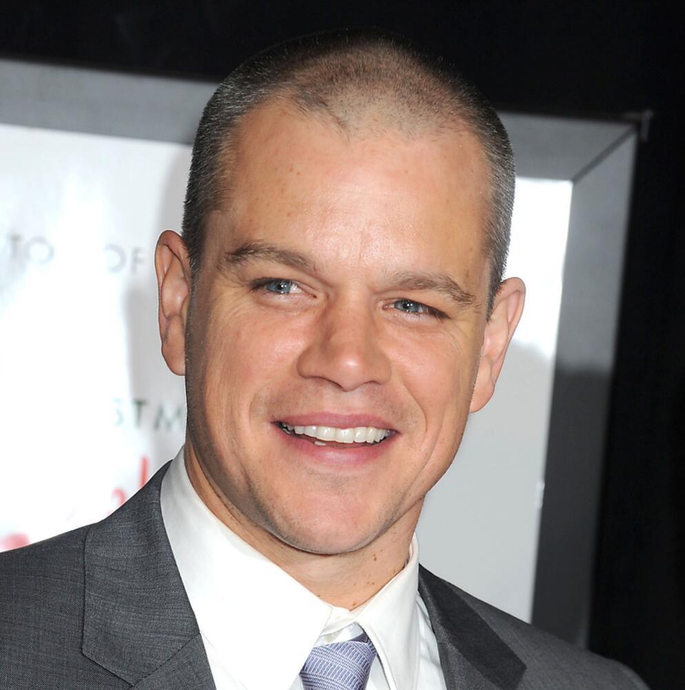 Matt Damon Bad Breath And Hair Plugs Celebrities Hair Transplants