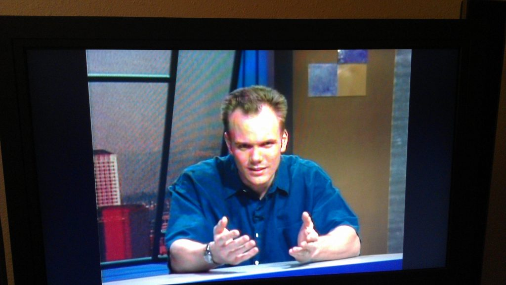 joel mchale hairline
