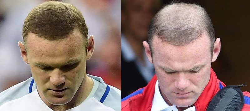 rooney new hair before and after
