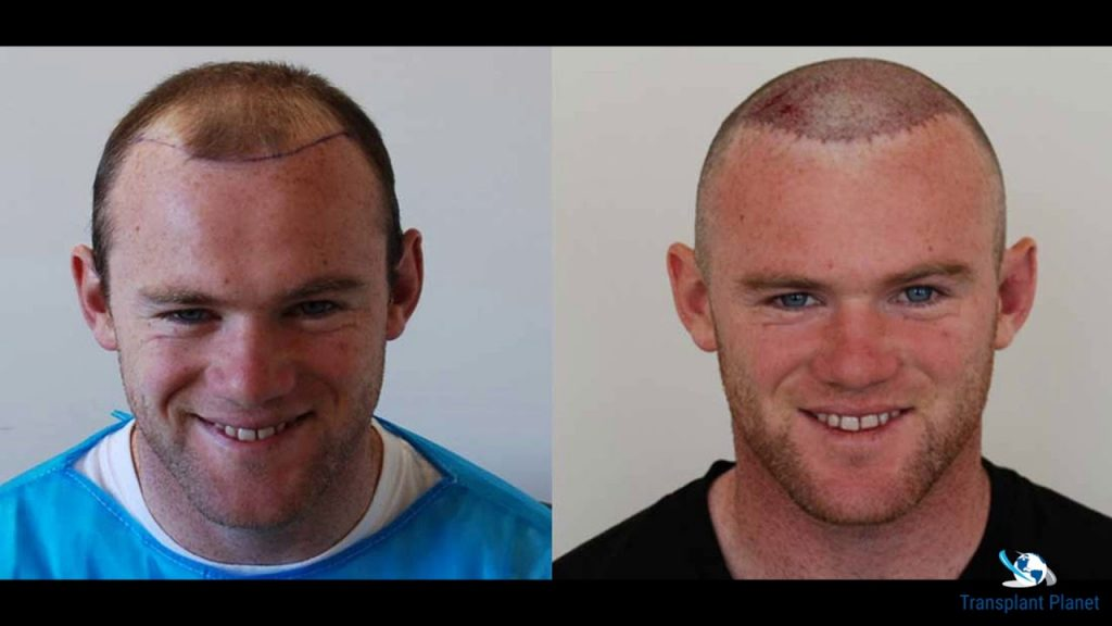 wayne rooney before and after